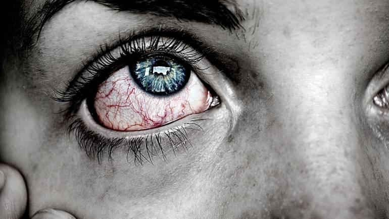 Conjuntivitis: síntomas y tipos